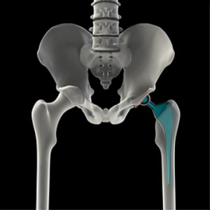 Defective Hip Replacement Injury